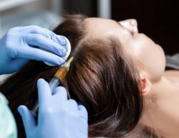 mezoterapia skóry głowy Katowice